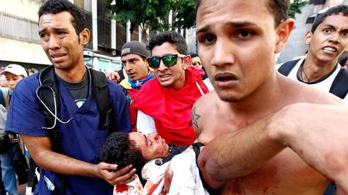 Esta imagen de Reuters, que le ha dado la vuelta al mundo a través de las redes sociales, habla por sí misma. Duele ver morir a los jóvenes.