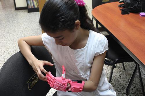 Luisa es la primera paciente que recibe este aporte. Ella pidió que el color de su mano fuera rosado, por lo que los estudiantes buscaron el apoyo para que fuera a su gusto. (Foto: Universidad Galileo)