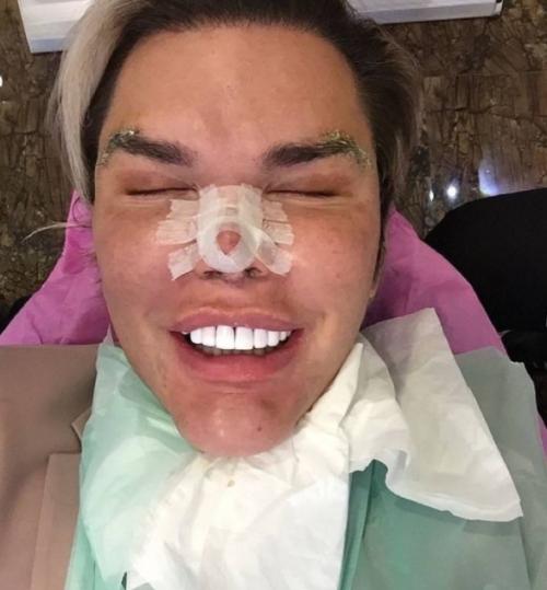 """Así luce """"Ken humano"""" tras la operación de sus dientes. (Foto: Instagram)"""