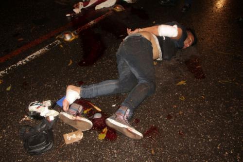 Un presunto delincuente resultó herido y fue detenido por las autoridades tras un enfrentamiento armado con agentes de la PNC. (Foto: PNC)