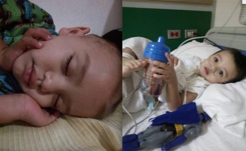 Bastian, de 3 años, tiene cáncer. (Foto: cortesía)