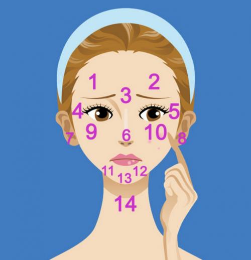 Estas son las áreas afectadas por el acné. (Diseño: facilisimo.com)