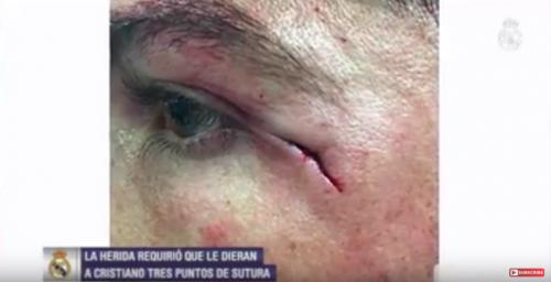 Así quedó la herida de Ronaldo luego del partido. (Foto: captura de video)