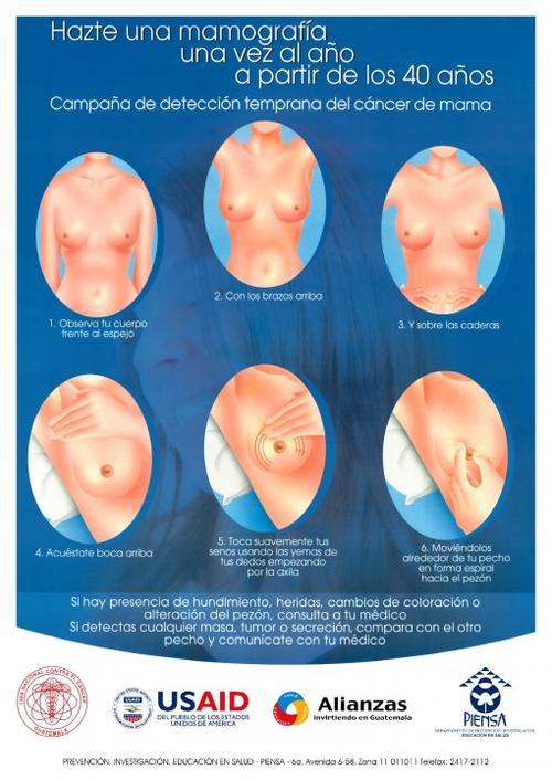 La detección temprana de cáncer puede salvar la vida de muchas mujeres.