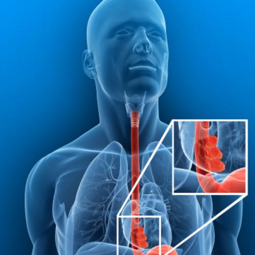 El cáncer de esófago, es la quinta forma más letal de esta enfermedad. (Foto: drfrank-young.com)