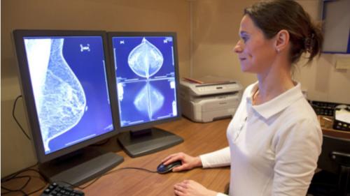La confirmación diagnóstica para iniciar un tratamiento contra el cáncer mamario es la biopsia. (Foto: rpp.pe)