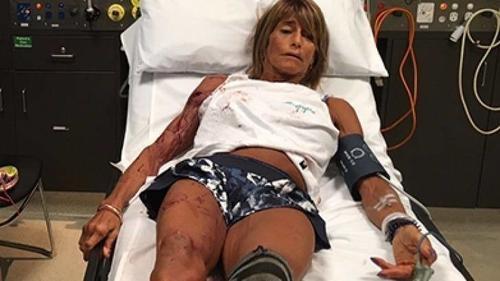 La mujer sufrió varias heridas en el lado derecho de su cuerpo. (Foto: Bendigo Advertiser)