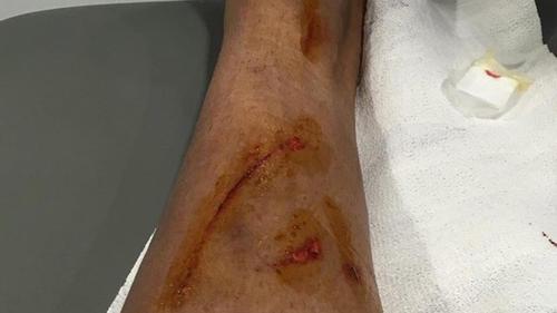 Así quedó la pierna de Danilo después de la fuerte entrada por parte de David García. (Foto: Marca)