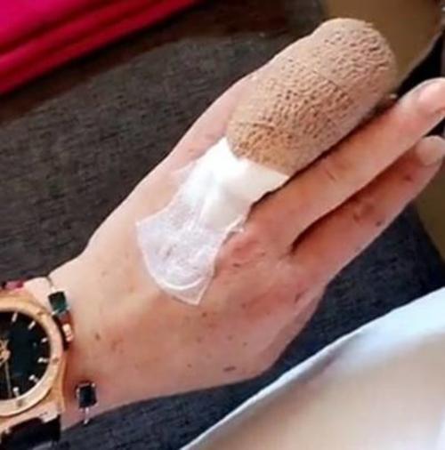 El dedo de Lohan después del accidente.