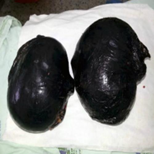 Los implantes le fueron retirados a la mujer en un centro médico. (Foto: informandotentn24tv.com)