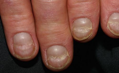 Las hendiduras en las uñas podrían ser por diabetes. (Foto: Tebme)
