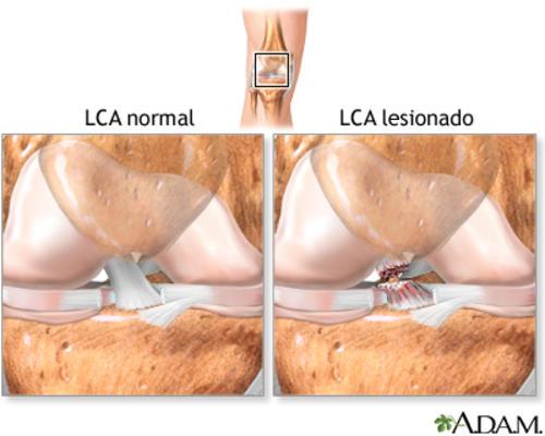 Una ruptura del ligamento cruzado anterior (LCA) en la rodilla. Esta puede ser parcial o completa.