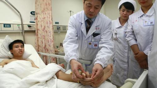 El hombre, de 25 años, llamado Xiao Wei, se cortó la mano con un taladro en noviembre 2013 en Changde, en la provincia central de Hunan, y fue injertada en su pierna para mantenerla con vida.