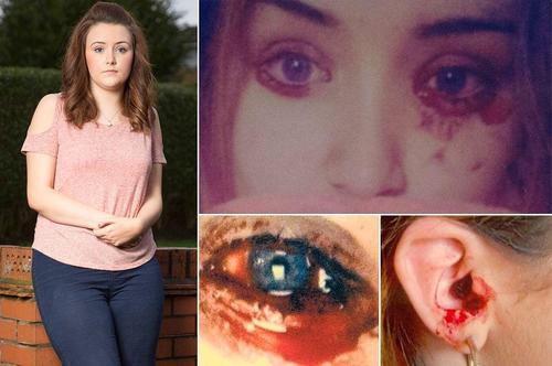 El diario The Sun publica fotos de Marnie Harvie la niña que llora sangre. (Foto: The Sun)