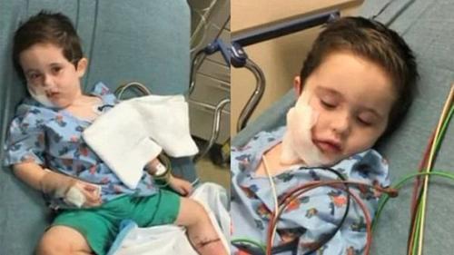 El niño de dos años fue hospitalizado con heridas en el rostro y una pierna. (Foto: Infobae)