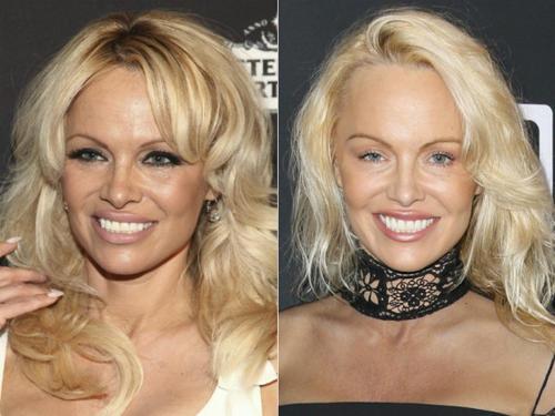 Del lado derecho ves a Pamela Anderson como luce en este 2017. (Foto: El Huffington Post)