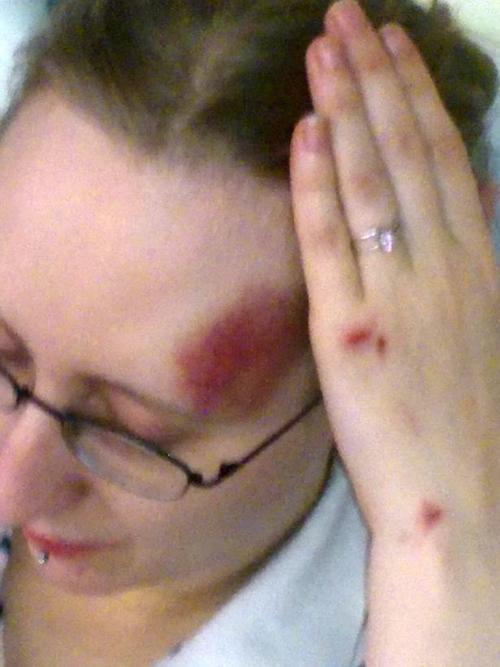El traumatismo que experimentó Nikki por la caída le dañó el sector del cerebro encargado de los recuerdos. (Foto SWNS)