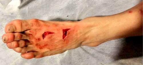 El jugador mexicano necesitó puntos de sutura para cerrar la herida que sufrió en el partido de Champions League.