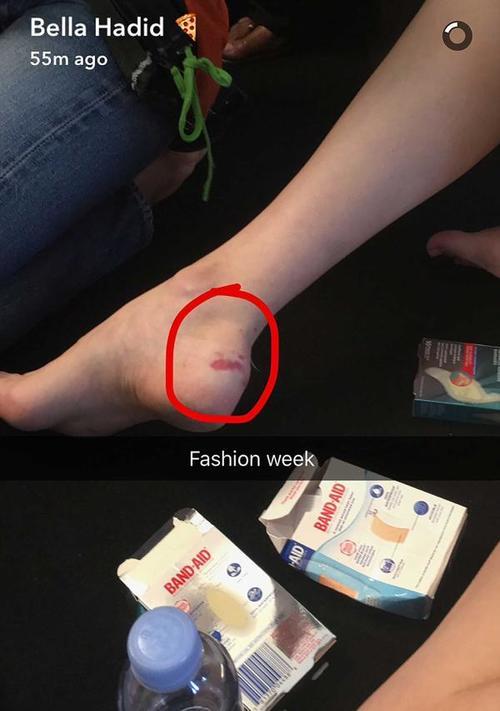 La modelo publicó en su Snapchat una foto de su pie lastimado luego de la caída. (Foto: Snapchat)