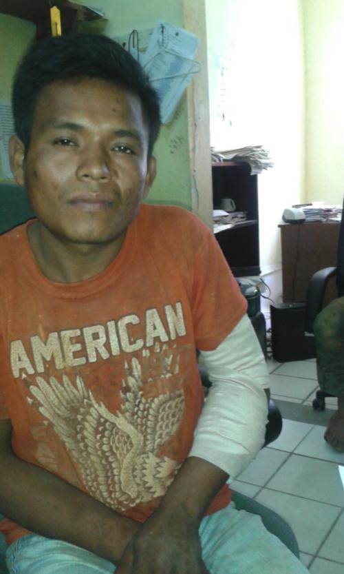 El ejército de Belice le disparó al guatemalteco Carlos Pérez, a quien señalan de haber intentado atacar a un militar con un machete. (Foto: MInisterio de Relaciones Exteriores)