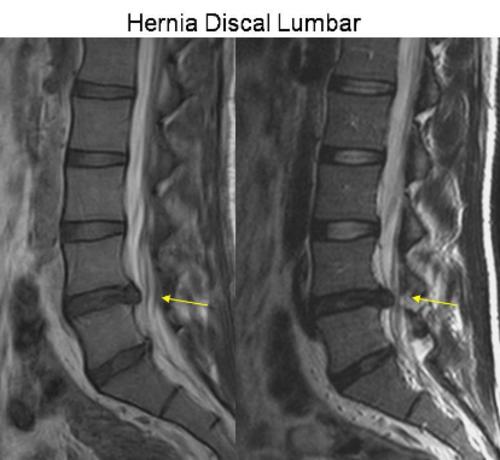 Según un informe médico preliminar, Marta Sierra debe guardar reposo por una hernia discal. (Foto: Neurocienciassfa)