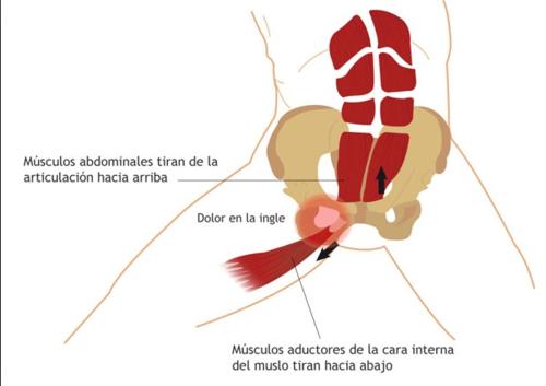 Explicación gráfica de la pubalgia (Imagen: FisioterapiaETC.com)
