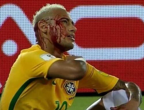Neymar le explica a Gabriel Jesús que fue un golpe con el codo. (Captura de Pantalla)