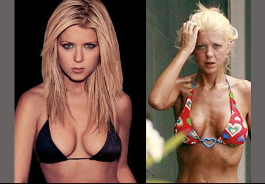 Las drogas y el alcohol han afectado la salud de la actriz.