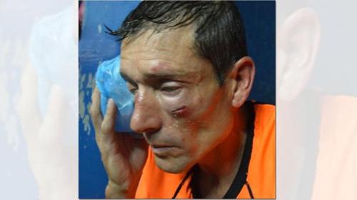 El árbitro tuvo que ser atendido en el hospital. (Imagen: Twitter)