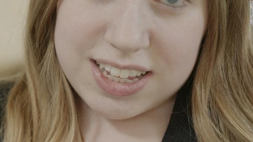 Jasmin no puede abrir su mandíbula más de un centímetro. (Foto: cnnenespanol.cnn.com)