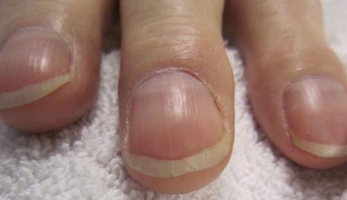 La curvatura de las uñas podría significar problemas de corazón o ser síntomas de SIDA, también puede ser un problema hereditario. (Foto: Medicine CF)