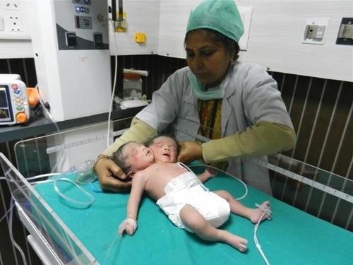 La niña se encuentra bajo estrecha observación en la unidad de cuidados intensivos neonatales. (Foto: Cygnus Hospital)