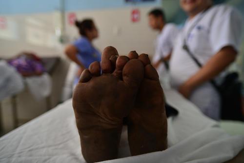 La mayoría de pacientes que acuden al hospital regional de Cuilapa, Santa Rosa son de escasos recursos. (Foto: Wilder López/Soy502)