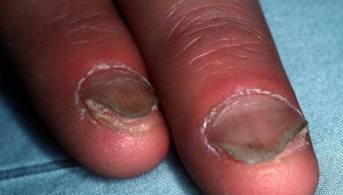 El hundimiento de la uña en forma de cuchara puede ser anemia o problemas de hígado. (Foto: Dermquest)