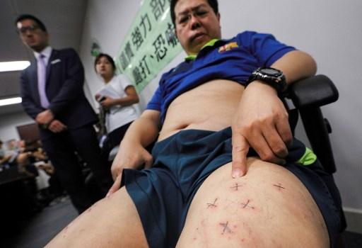 Lam muestra las grapas que le fueron incrustadas en las piernas. (Foto. AFP)