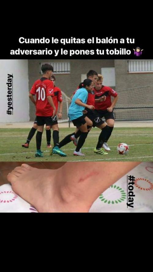 Ana Lucía Martínez se lleva un doloroso recuerdo de un partido contra un equipo juvenil masculino. (Foto: Instagram)
