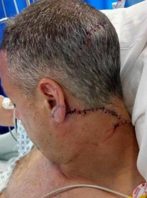 Larner sufrió una herida en la cabeza que requirió varios puntos de sutura. (Foto: Mirror)