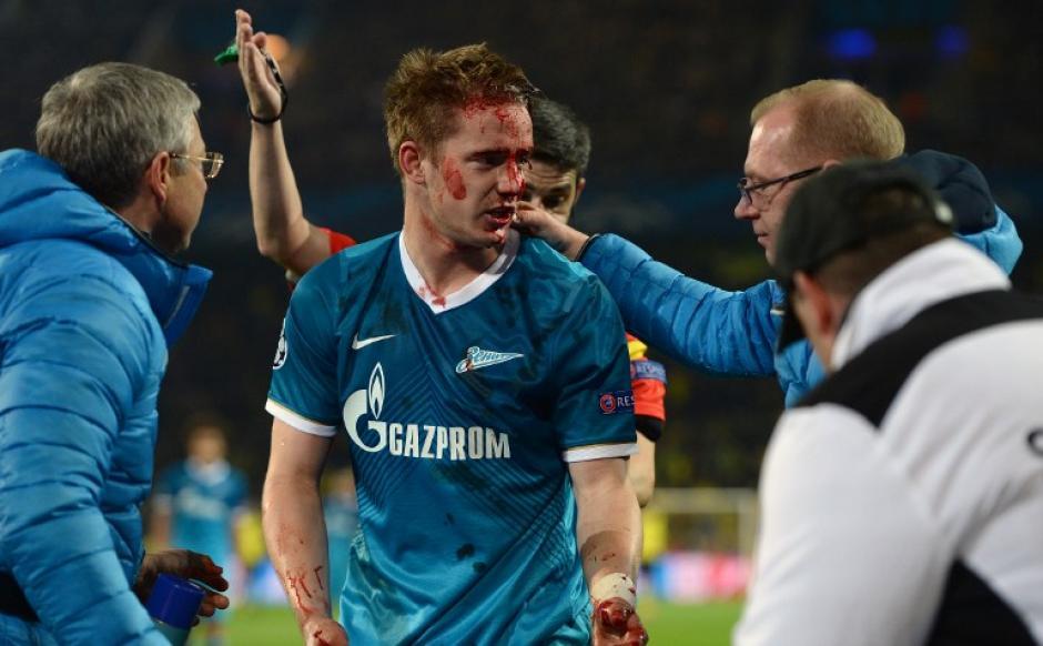 Tomas Hubocan es asistido tras recibir un corte en el juego que el Zenit ganó 2-1 ante el Borussia Dortmund