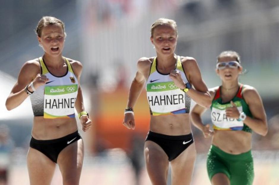Lissa y Ann tienen 26 años y son hermanas gemelas alemanas. (Foto: AFP)