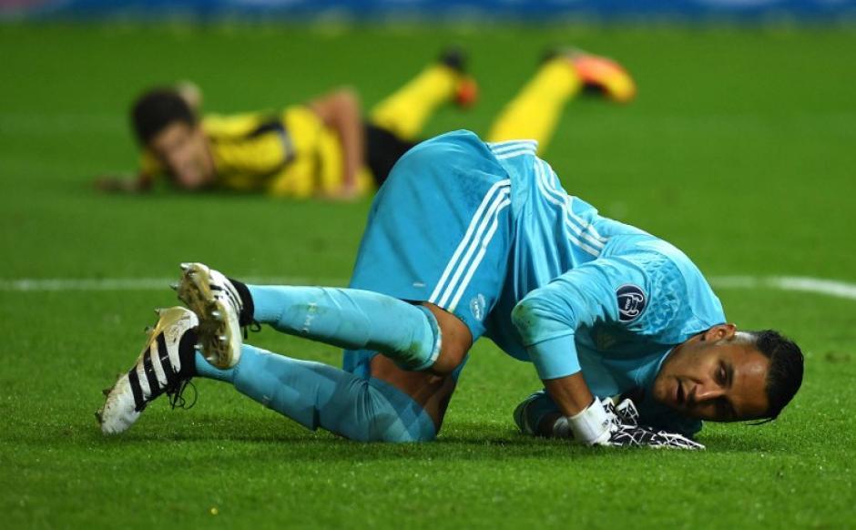 Keylor falló en el gol del empate del Dortmund. (Foto: AFP)