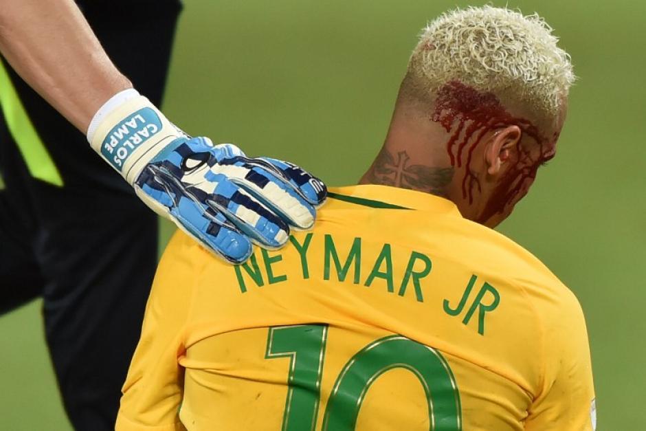 El técnico brasileño no quiso arriesgar y lo sacó. (Foto: AFP)