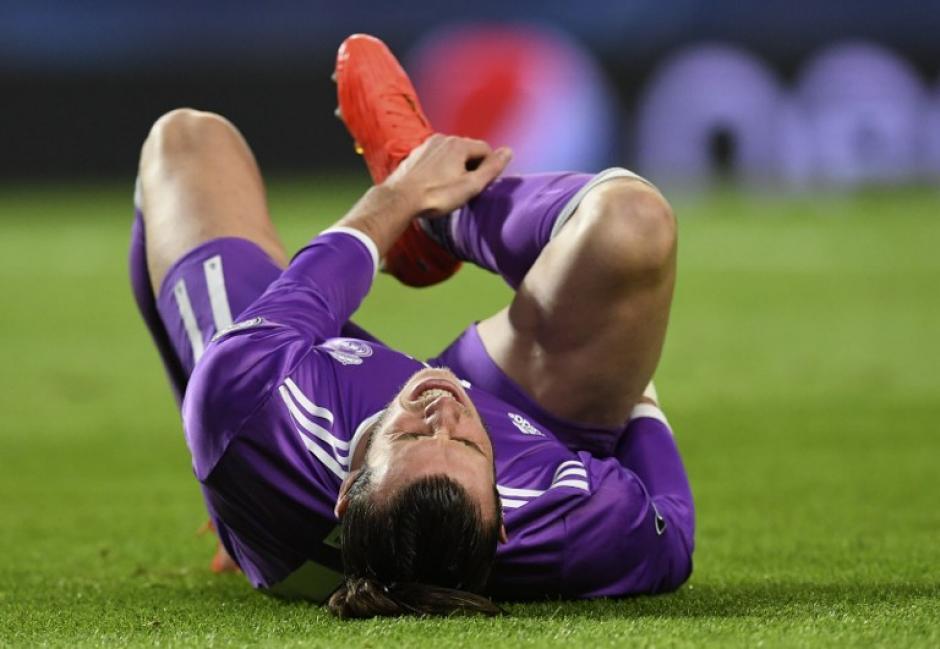 El galés se golpeó el tobillo y resultó ser más grave de lo esperado. (Foto: AFP)