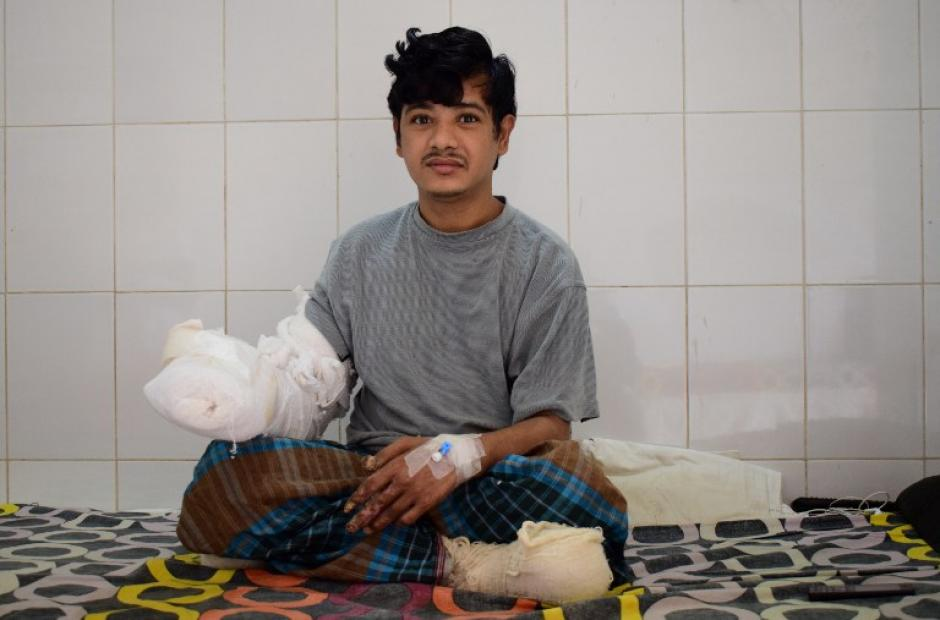 El hombre fue sometido a 16 operaciones en sus manos y pies. (Foto: AFP)