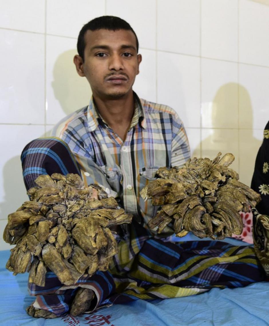 La extraña enfermedad empezó a afectarle en la adolescencia. (Foto: AFP)