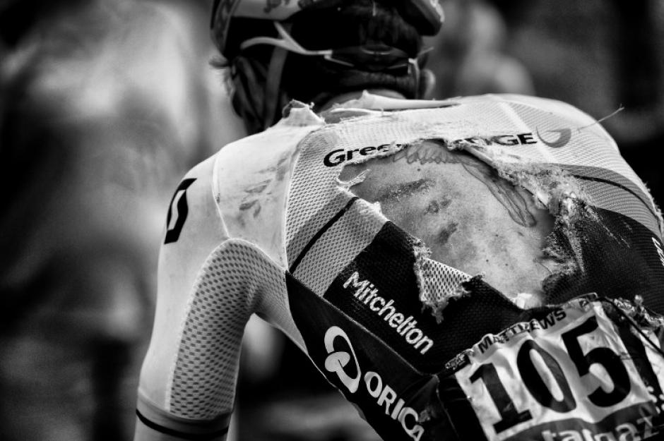 Así quedó la espalda del ciclista Michael Matthews luego de una caída en la tercera etapa. (Foto: Jeff Pachoud/AFP)