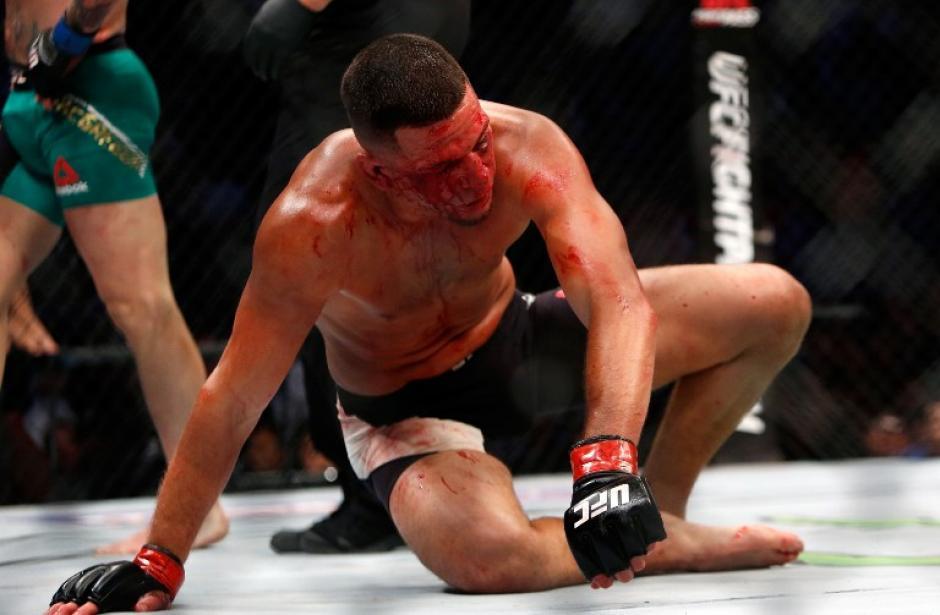 Nate Díaz cae al suelo, mientras la sangre corre por su cara. (Foto: AFP)