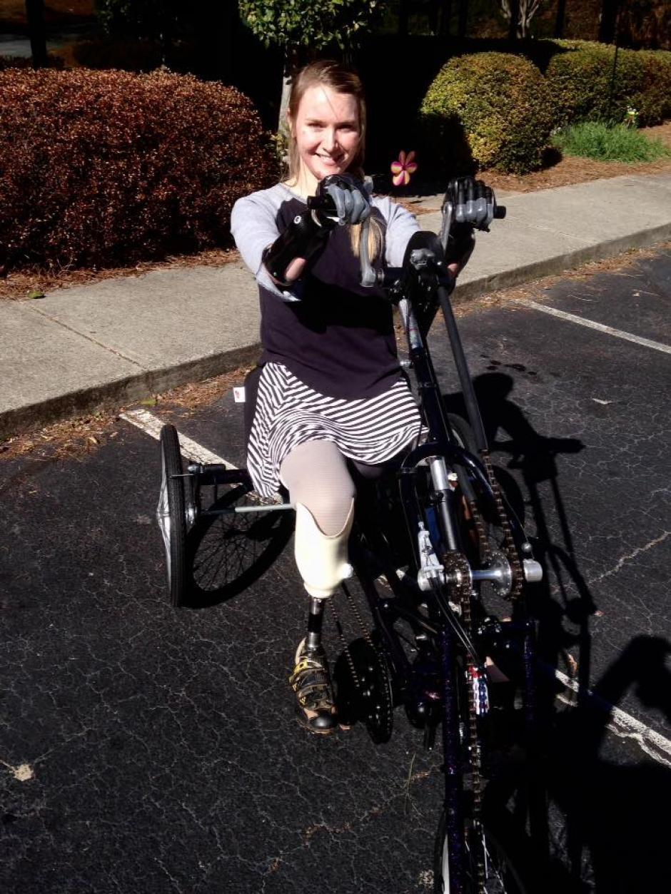 Aimee se siente orgullosa de su nuevo yo. (Foto: Aimee Copeland)