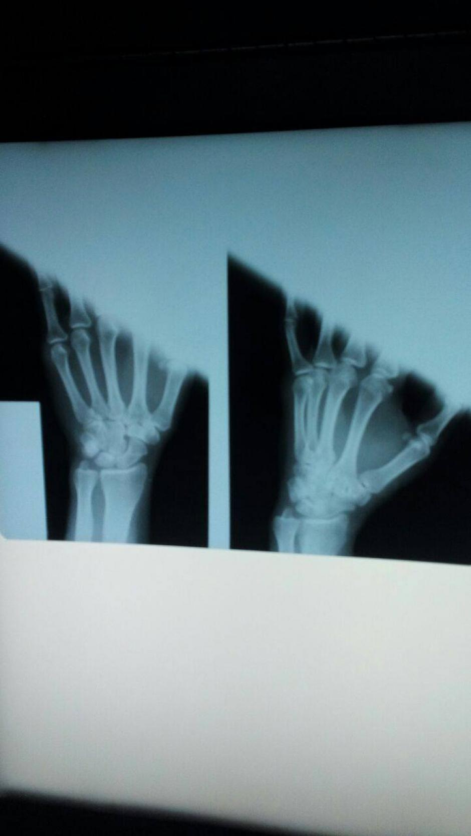 La única maquina de rayos X funcional del Hospital San Juan de Dios presentó un nuevo desperfecto. (Foto: Facebook/Curemos Guate)