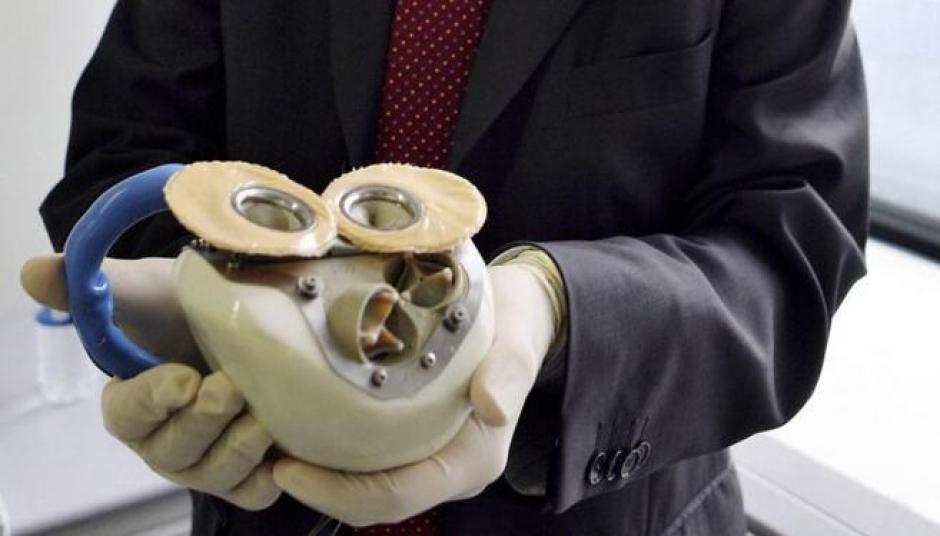 A mediados del siglo pasado se empezó a usar la técnica del corazón artificial. (Foto: El mundo)