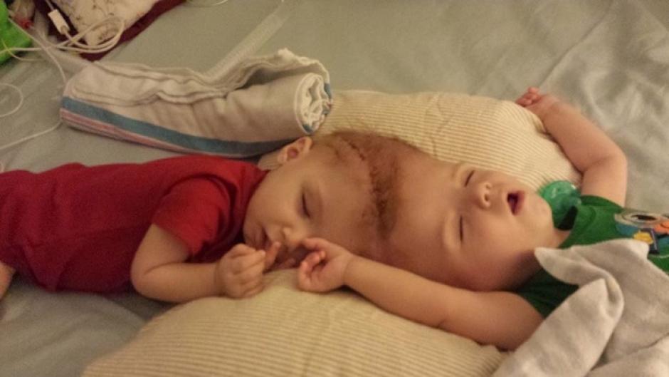 Los hermanitos fueron sometidos a la cirugía para mejorar su calidad de vida (Foto: Infobae)